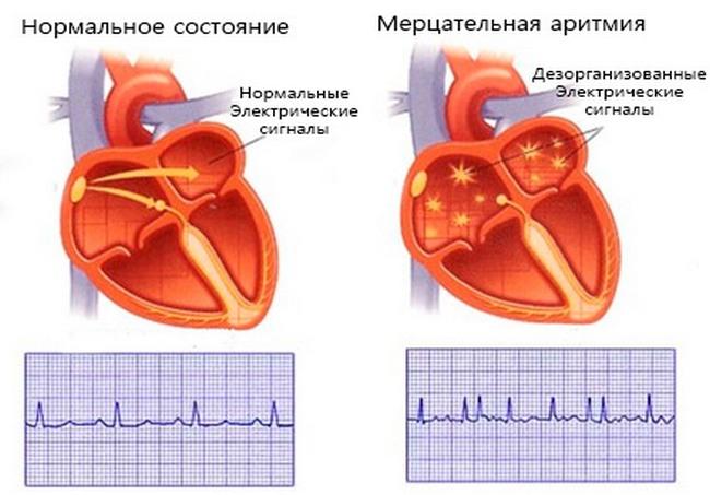 Мерцательная артимия: причины, симптомы и лечение мерцательной артимии