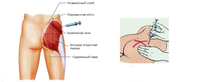 Как сделать самой себе внутримышечный укол