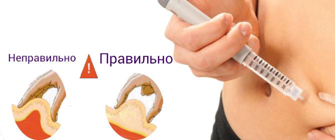 Как делать себе уколы в руку
