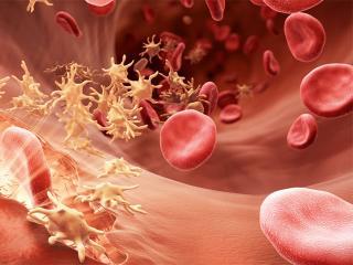 Жизнь с гемофилией (медицинская энциклопедия)