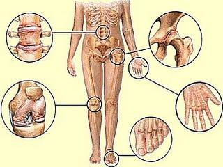 Артрит.  Рацион питания  при артритах