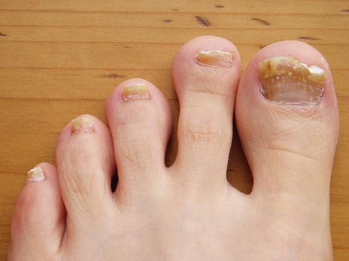 Какое средства помогает от грибка ног отзывы
