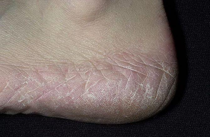 Терапии грибка ногтей