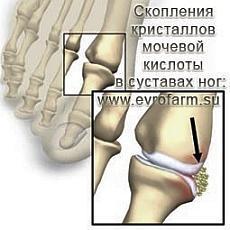 Подагра и подагрический артрит.  Народные методы лечения подагры