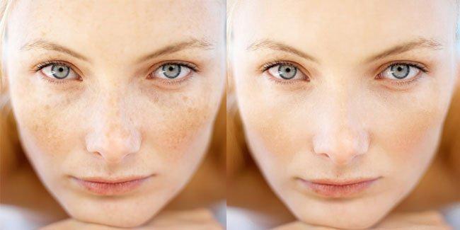 Удаление пигментации на лице препараты