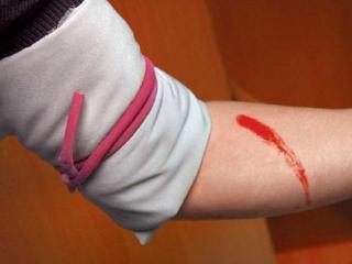 Правила обработки ран и остановки кровотечения