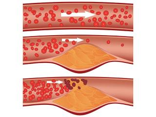 Повышает ли соевый соус холестерин