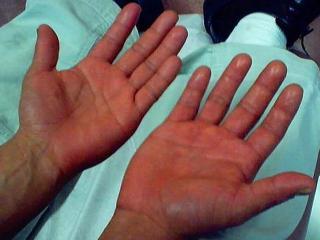 Эритремия (медицинская энциклопедия)