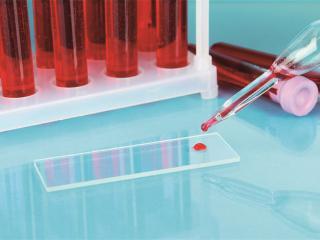 Биохимический анализ крови, расшифровка показателей для взрослых