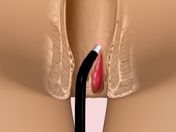 болезни сфинктера Диета при гастроэзофагеальной рефлюксной болезни.