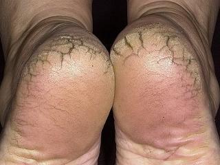 Трещины на пятках.  Рецепты красоты ваших ног