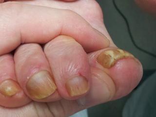 Мицелий лечение грибка на ногтях