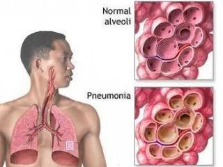 Пневмония (воспаление легких). Лечение пневмонии народными методами (рецепты народной медицины)