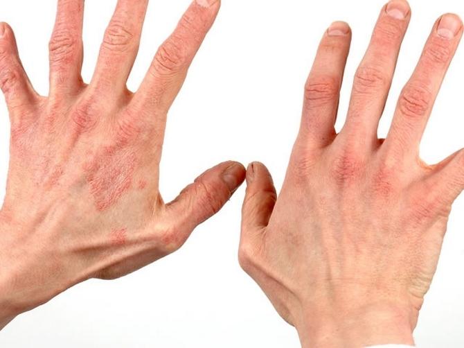 аллергический дерматит на руках фото лечение
