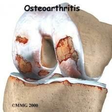 Артрит. Народные методы лечения артрита (рецепты народной медицины)