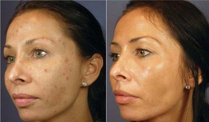 ультразвуковая чистка лица после филлеров