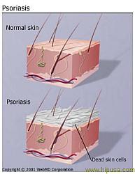 Псориаз. Рецепты народной медицины в помощь при лечении псориаза