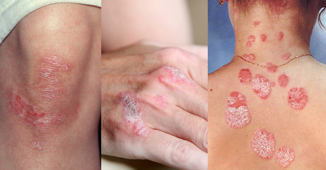 Красные пятна на лице и теле - характерные признаки аллергии или тревожные сигналы кожных заболеваний?